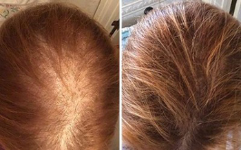 Non-surgical Hair Regrowth in Prince George, Bc