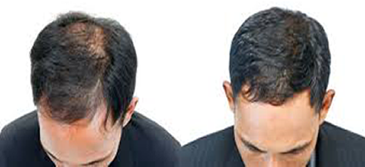 Before and After Hair Loss in Prince George, BC